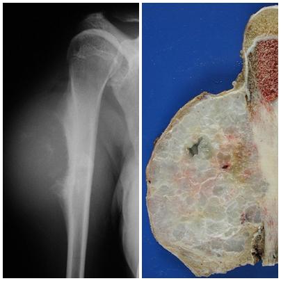 Chondrosarcoma and Chondroma - Difference   Oncocirurgia